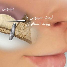 جراحی سینوس لیفت در جردن,کاشت ایمپلنت دندان در جردن