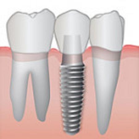 ایمپلنت دندان -  - کاشت دندان,ایمپلنت دندان در ونک