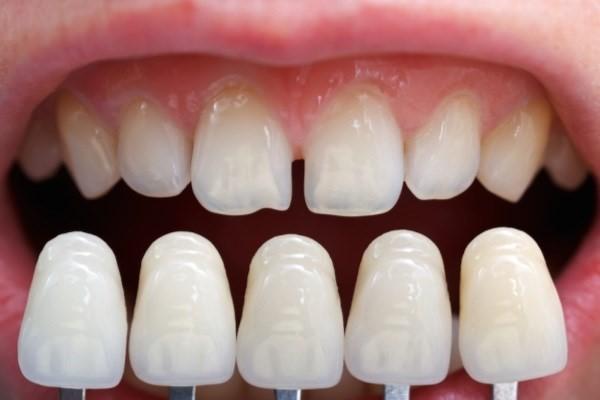لمینت دندان(ونیر پرسلن) -  - لمینت دندان در ونک,لمینت دندان,قیمت لمینیت دندان در ونک