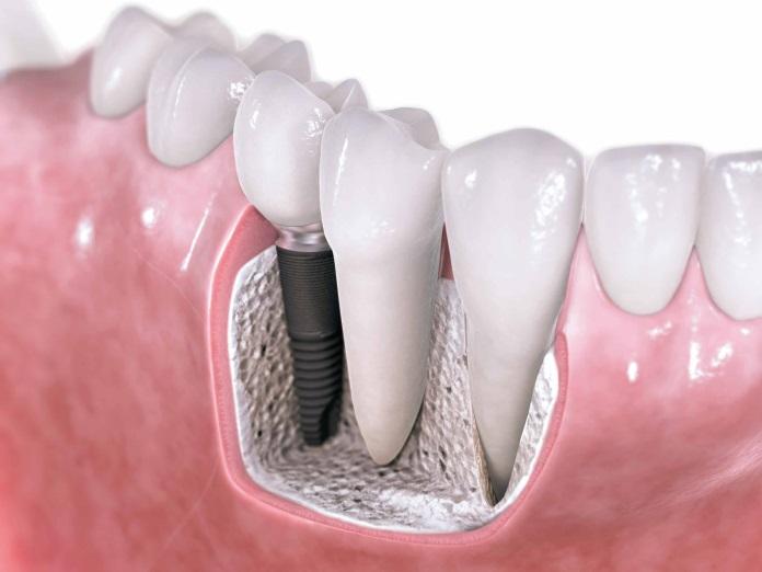 ایمپلنت دندان -  - ایمپلنت دندان