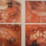 بیرون زدن ایمپلنت دندان -  - بیرون زدن ایمپلنت دندان