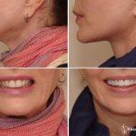 اصلاح طرح لبخند-دندانپزشک زیبایی -  - اصلاح طرح لبخند-دندانپزشک زیبایی