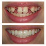 ارزیابی های قبل از جراحی ایمپلنت دندان -  - ارزیابی های قبل از جراحی ایمپلنت دندان