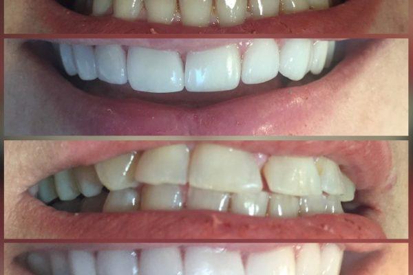 بستن فواصل میان دندان ها -  - بستن فواصل میان دندان ها