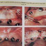 جراحی پیوند لثه -  - جراحی پیوند لثه