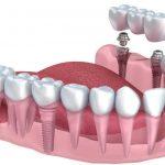 روش نمایان کردن ایمپلنت دندان -  - روش نمایان کردن ایمپلنت دندان
