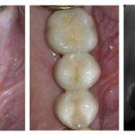 توجه به بافت کراتینیزه اطراف ایمپلنت دندان -  - توجه به بافت کراتینیزه اطراف ایمپلنت دندان