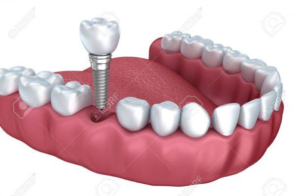 جایگزینی مولر(دندان خلفی) با ایمپلنت دندان -  - جایگزینی مولر(دندان خلفی) با ایمپلنت دندان