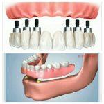 روش های تک مرحله ای و دو مرحله ای ایمپلنت دندان -  - روش های تک مرحله ای و دو مرحله ای ایمپلنت دندان