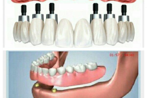 دنچر های پارسیل ثابت در مقابل ایمپلنت دندان -  - دنچر های پارسیل ثابت در مقابل ایمپلنت دندان
