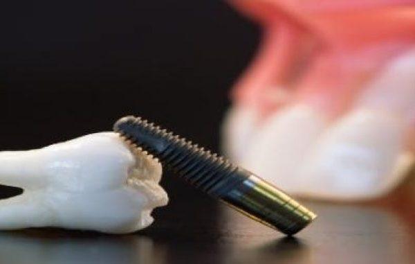 قضیه درمان استرس در دندانپزشکی ایمپلنت دندان -  - قضیه درمان استرس در دندانپزشکی ایمپلنت دندان