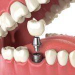 تاریخچه ی ایمپلنت های دندانی داخل استخوانی -  - تاریخچه ی ایمپلنت های دندانی داخل استخوانی