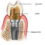 شیوع و تشخیص بیماری های ایمپلنت دندان -  - شیوع و تشخیص بیماری های ایمپلنت دندان