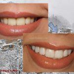 پرکردگی های کامپوزیت دندان های عقب -  - پرکردگی های کامپوزیت دندان های عقب