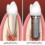 ایمپلنت دندان ها -  - ایمپلنت دندان ها