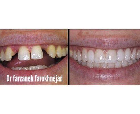 دندانپزشکی تخصصی در ونک,دندانپزشک متخصص کودکان ونک,عکس لمینیت دندان, قیمت لمینیت دندان
