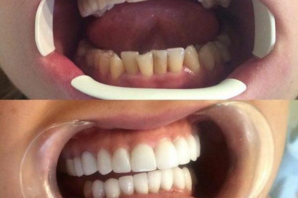 لامینیت, لمینیت,دکتر فرخ نژاد,کلینیک تخصصی دندانپزشکی ونک