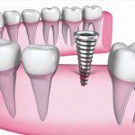 بارگذاری بیش از حد ایمپلنت دندان -  - بارگذاری بیش از حد ایمپلنت دندان