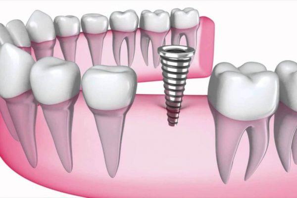 واکنش ایمنی توام و همراه با ایمپلنت دندان جوش خورده(osseointegrated) -  - واکنش ایمنی توام و همراه با ایمپلنت دندان جوش خورده(osseointegrated)