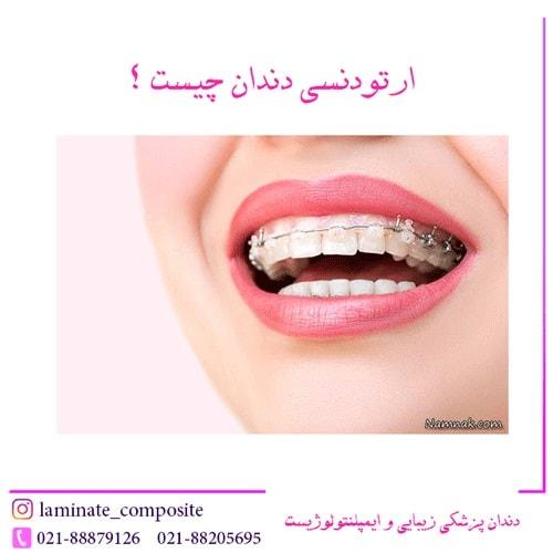 دندان چیست؟  - همه چیز در مورد ارتودنسی دندان