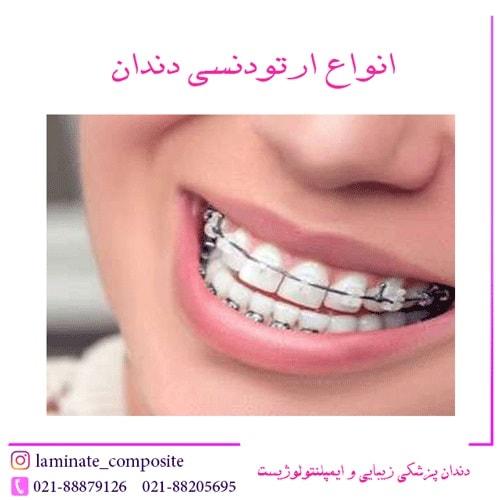 ارتودنسی دندان  - همه چیز در مورد ارتودنسی دندان