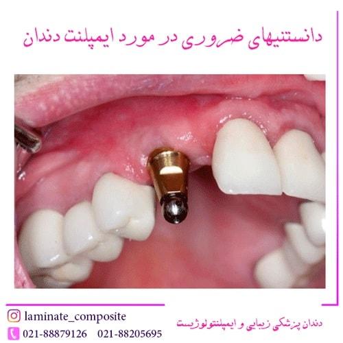 دندان چیست؟  - همه چیز را در مورد ایمپلنت بدانید