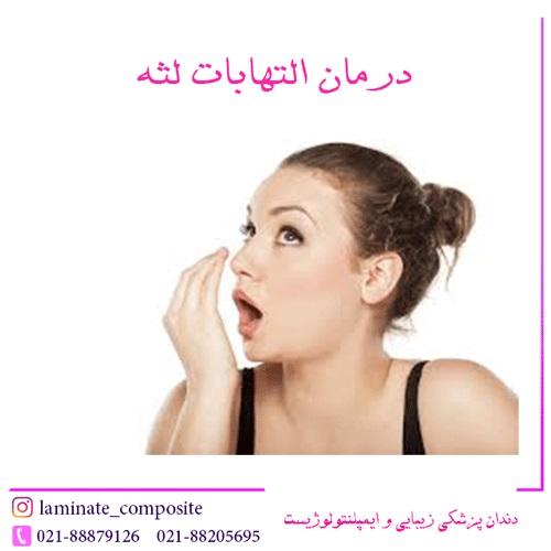 %D8%AF%D8%B1%D9%85%D8%A7%D9%86 %D8%A7%D9%84%D8%AA%D9%87%D8%A7%D8%A8%D8%A7%D8%AA %D9%84%D8%AB%D9%87 - علت بوی بد دهان + درمان