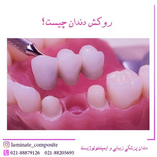 %D8%B1%D9%88%DA%A9%D8%B4 %D8%AF%D9%86%D8%AF%D8%A7%D9%86 %DA%86%DB%8C%D8%B3%D8%AA - همه چیز در مورد روکش دندان + مزایا و معایب