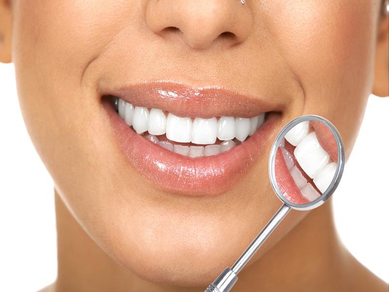 دندان - همه چیز در مورد روکش دندان + مزایا و معایب