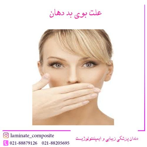 %D8%B9%D9%84%D8%AA %D8%A8%D9%88%DB%8C %D8%A8%D8%AF %D8%AF%D9%87%D8%A7%D9%86 - علت بوی بد دهان + درمان