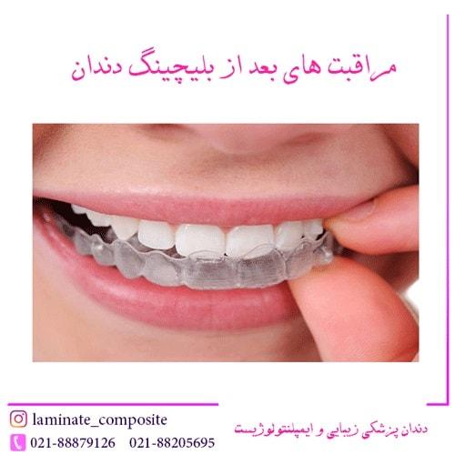 های بلیچینگ  - بلیچینگ دندان و دانستنیهای ضروری