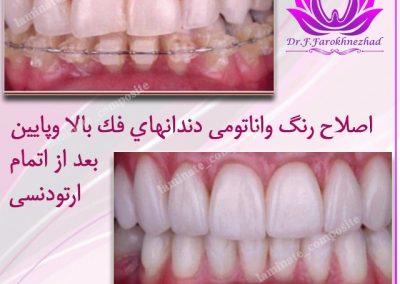 رنگ دندان 400x284 - نمونه کارها