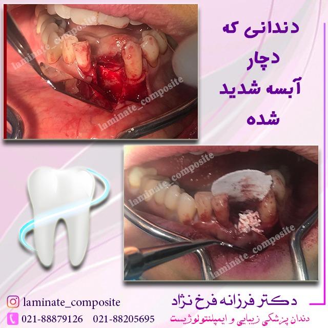 آبسه دندان - نمونه کارها