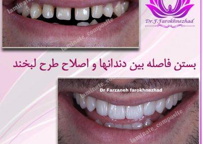 کردن دندان 400x284 - نمونه کارها