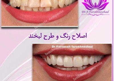 دندان 400x284 - نمونه کارها