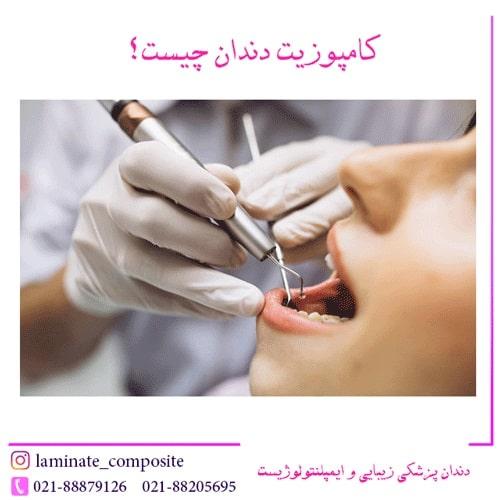 دندان ؟  - کامپوزیت دندان چیست؟