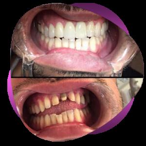 frkh2 300x300 - برای یک عمرتان لبخند زیبا بسازید