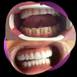 frkh4 300x300 - برای یک عمرتان لبخند زیبا بسازید