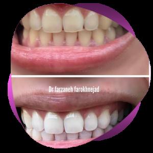 frkh8 300x300 - برای یک عمرتان لبخند زیبا بسازید