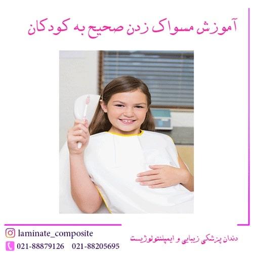مسواک زدن صحیح به کودکان  - دندانپزشکی پیشگیری