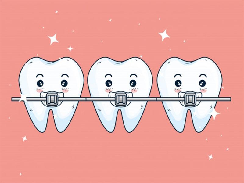 نامرئی دنداان  - همه چیز در مورد ارتودنسی نامرئی