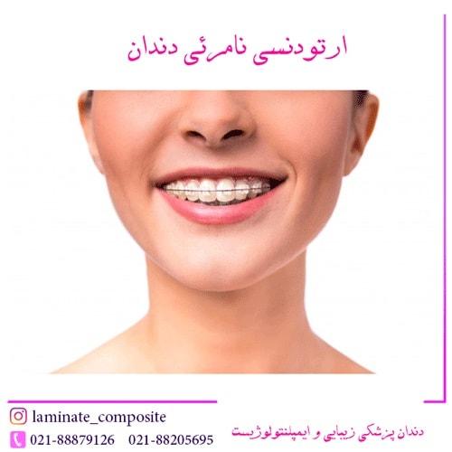 نامرئی دندان  - همه چیز در مورد ارتودنسی نامرئی