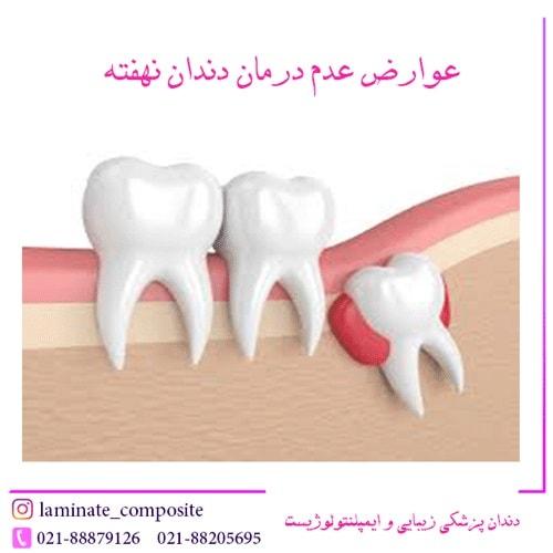 دندان نهفته  - از جراحی دندان نهفته چه می دانید؟