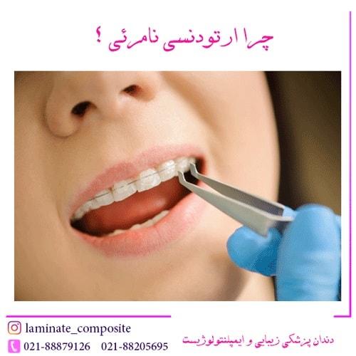 ارتودنسی نامرئی دندان  - همه چیز در مورد ارتودنسی نامرئی