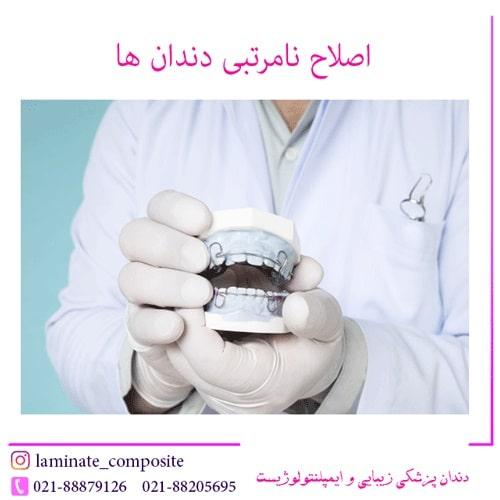نامرتبی دندان ها با پرسلین ونیر 2 - اصلاح نامرتبی دندان ها بدون ارتودنسی