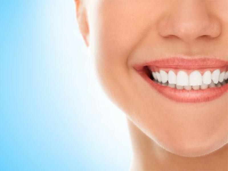 اصلاح نامرتبی دندان ها بدون ارتودنسی