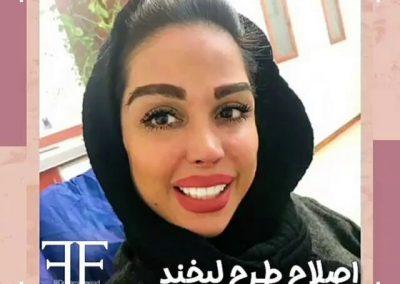 نمایی از اصلاح طرح لبخند