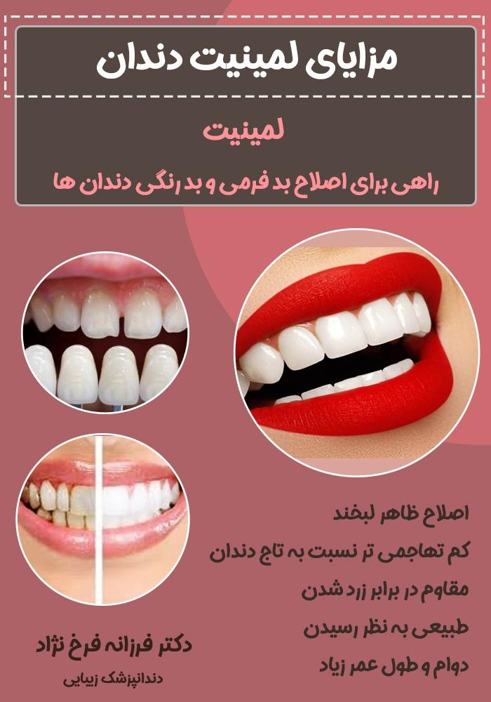 92703c46 17e0 4e2b 9370 ade79224a3c1 - لمینت دندان