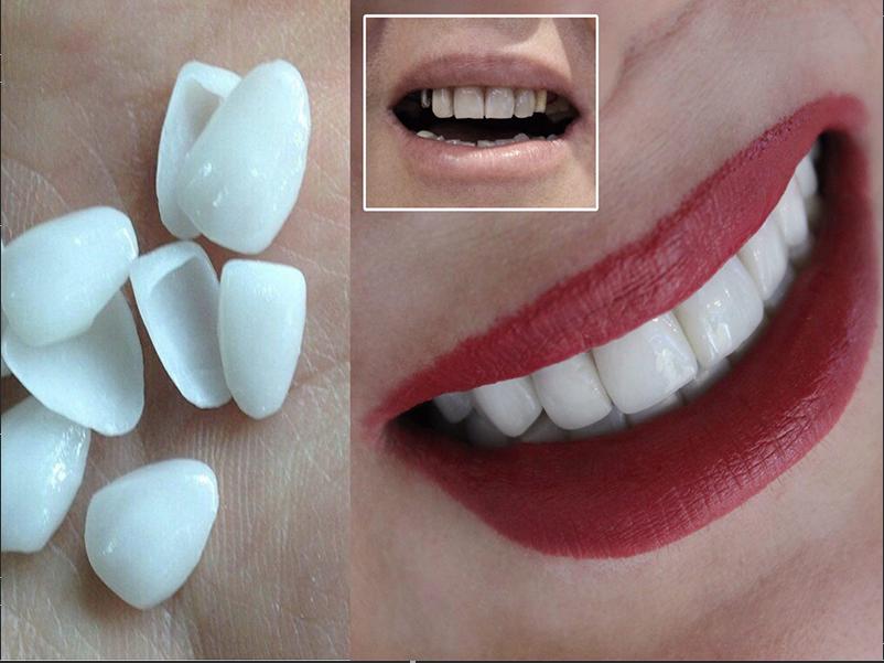 لمینت زیبایی دندان ها