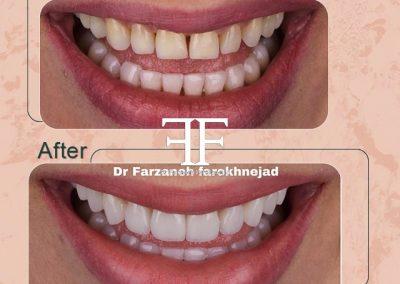 نمونه ای از اصلاح طرح لبخند